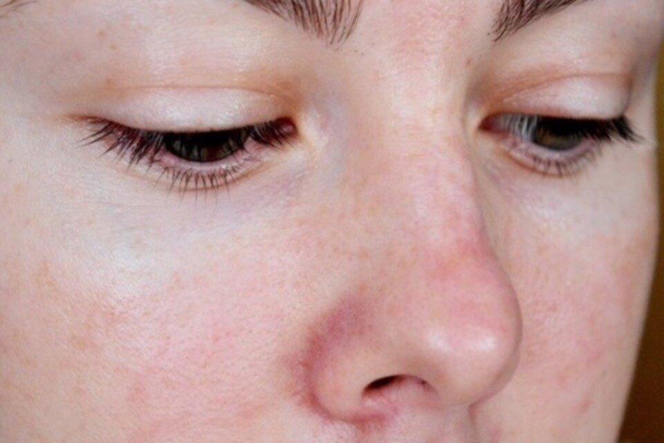 recepty masok ot kuperoza na lice