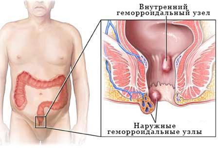 simptomy gemorroya vnutrennego