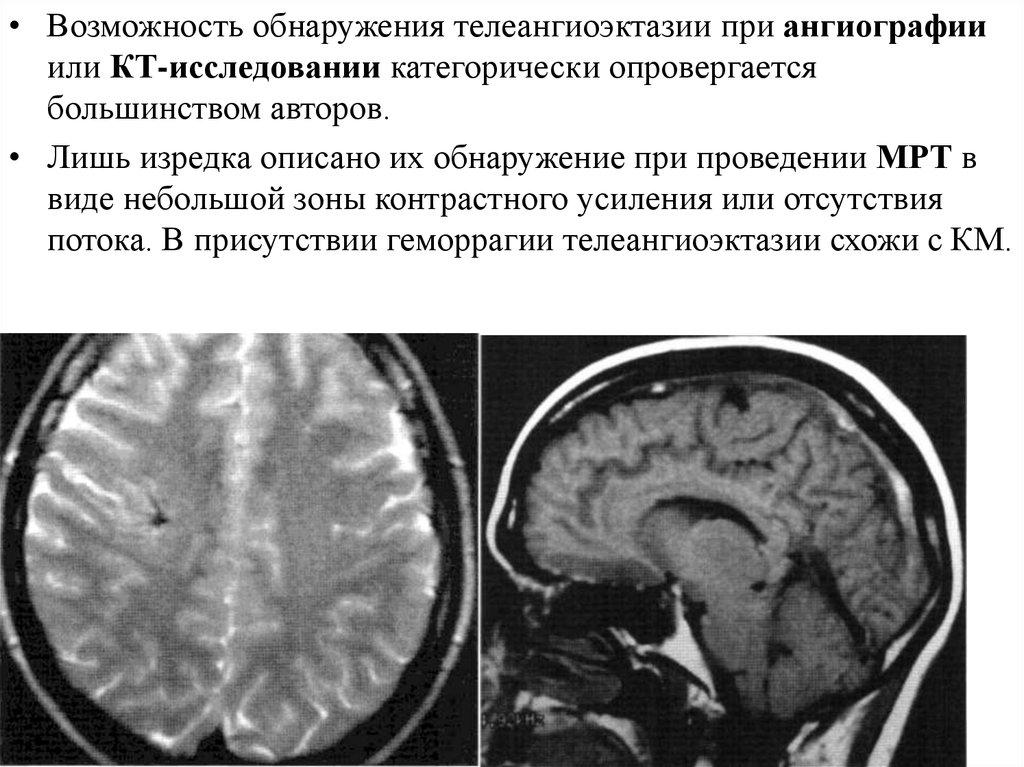 sosudistye malformacii golovnogo i spinnogo mozga