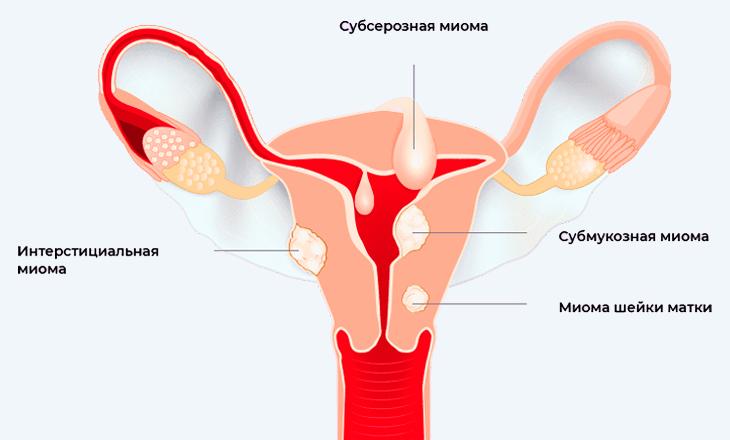 techenie beremennosti i rodov pri takom diagnoze kak mioma matki