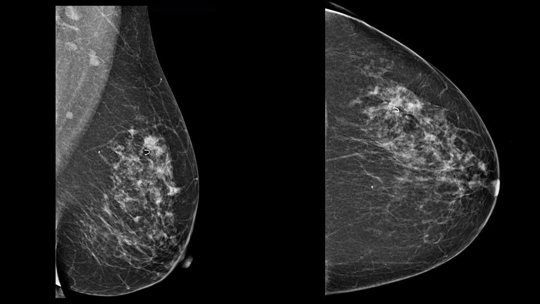 tomosintez novyj effektivnyj metod vizualizacii raka molochnoj zhelezy