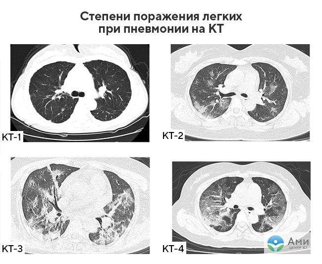 tuberkulez na kompjuternoj tomografii varianty i ih proyavleniya