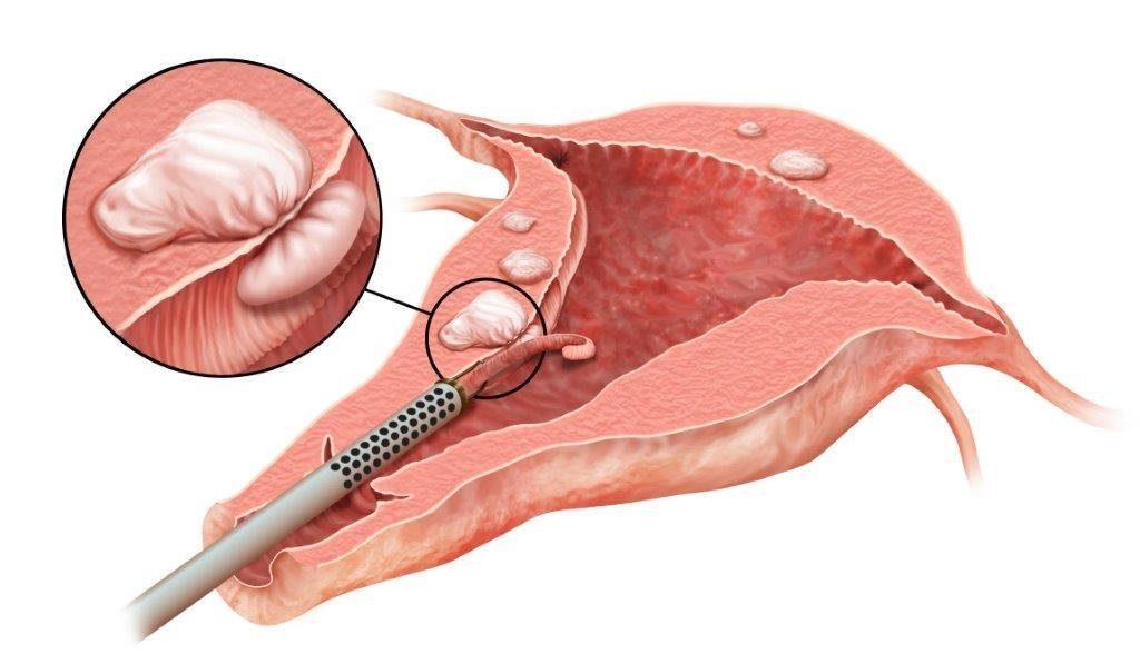 udalenie polipa endometriya kak provoditsya operaciya podgotovka k nej i posledstviya