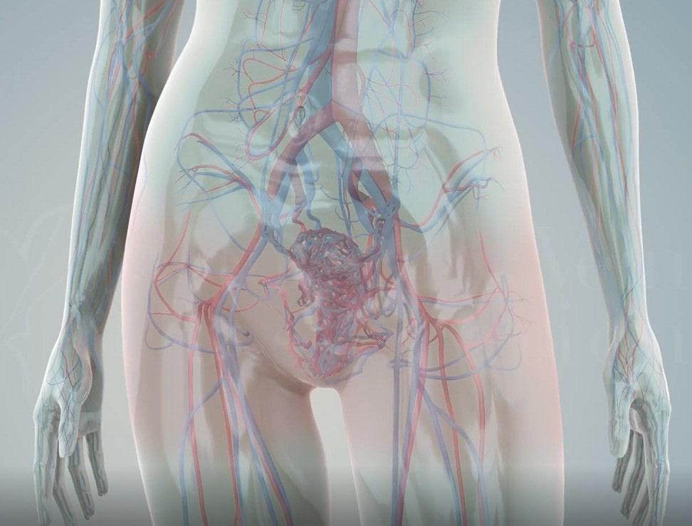 varikoznoe rasshirenie ven malogo taza u zhenshhin kto pomozhet flebolog ili ginekolog