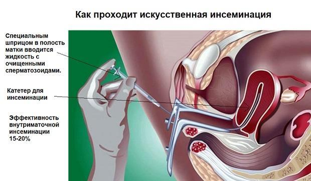 vnutrimatochnaya inseminaciya chto eto za metod i kogda on primenyaetsya