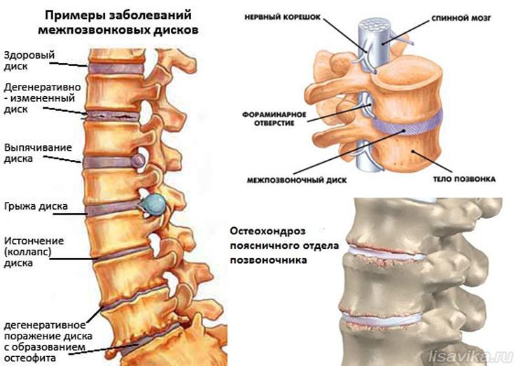 chto takoe osteohondroz pozvonochnika