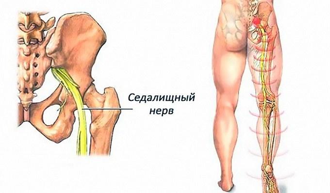 dejstviya pri zashhemlenii ili vospalenii sedalishhnogo nerva