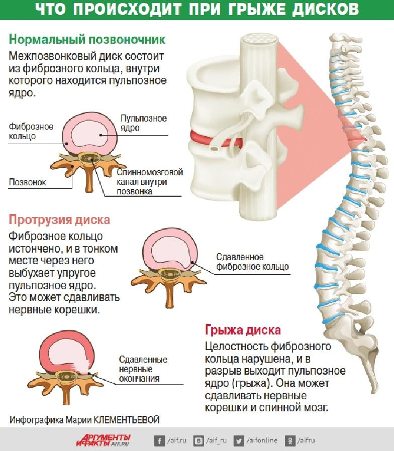 diagnostika i process razvitiya gryzhi pozvonochnika