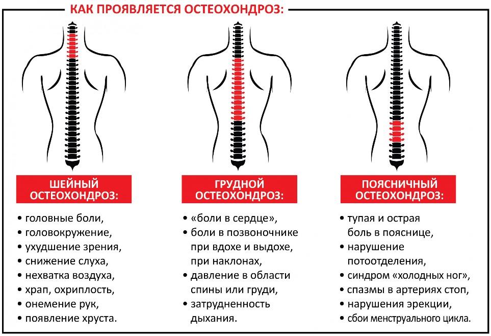 diagnostika i profilaktika bolej v spine