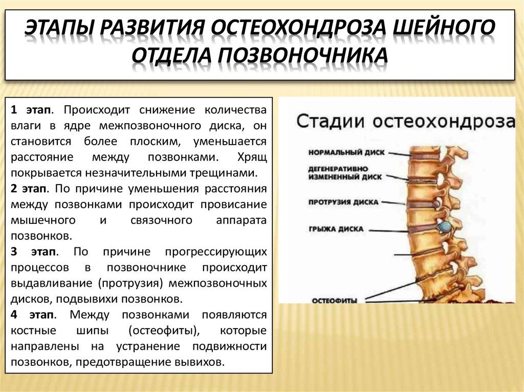 etapy razvitiya osteohondroza spiny