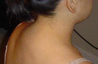 gorb ne zabolevanie a kosmeticheskij defekt