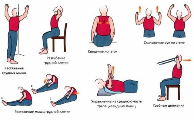 kompleks uprazhnenij ukreplyajushhie myshcy i izbavlyajushhie ot boli v spine