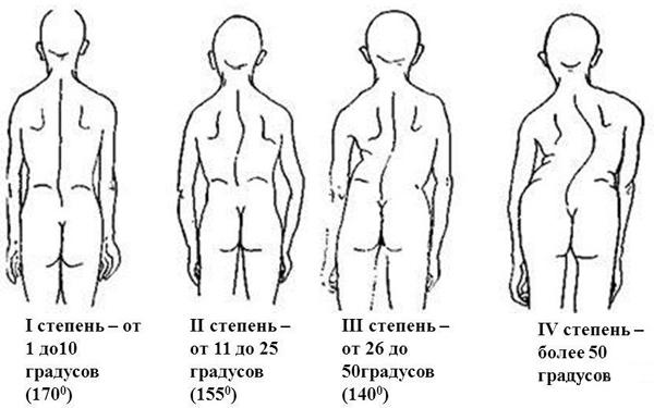 metodika lecheniya i profilatika skolioza 3 stepeni