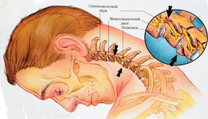 mezhpozvonochnaya gryzha shejnogo otdela simptomy i lechenie