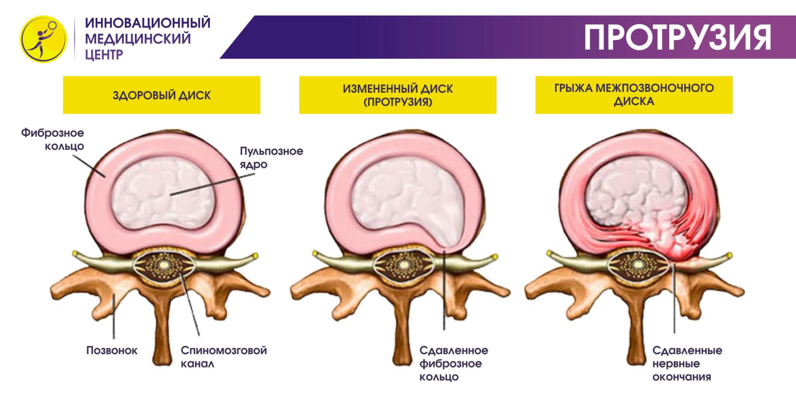 osnovnye simptomy dorzalnoj protruzii diska