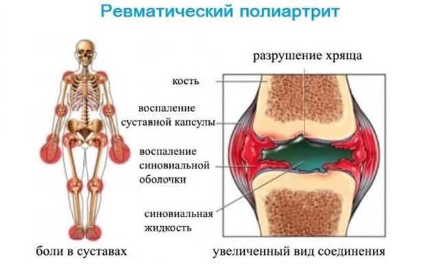 osnovnye simptomy i lechenie poliarta