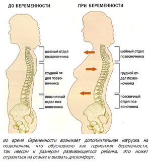 prichiny i lechenie bolej v spine pri beremennosti