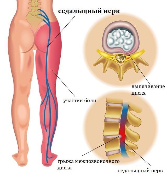 prichiny i lechenie boli v spine kotoraya otdaet v nogu