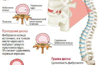 prichiny priznaki i osnovnye metody lecheniya spinnomozgovoj gryzhi