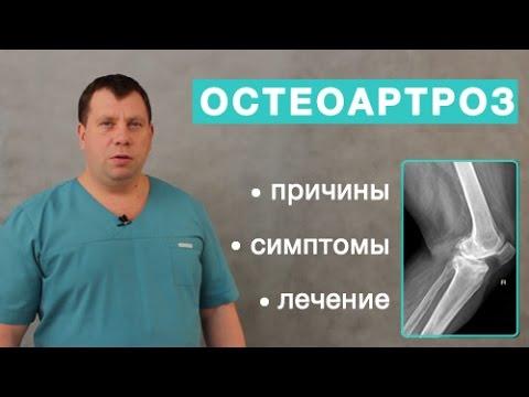 prichiny simptomy i lechenie osteoartrita