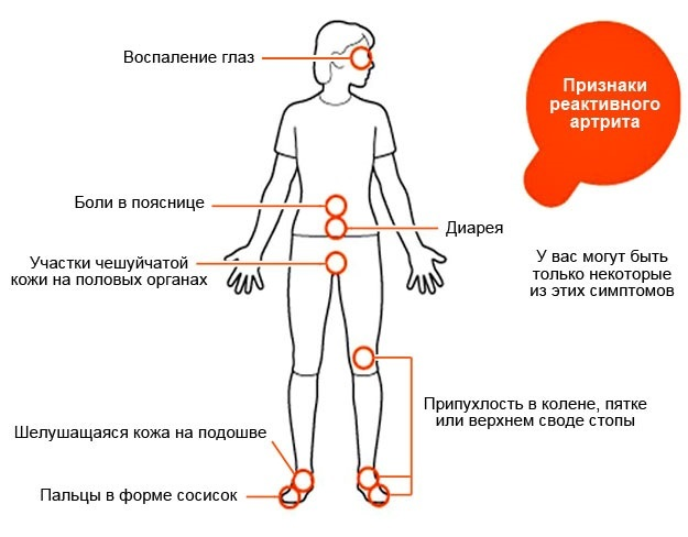 priznaki i lechenie reaktivnogo artrita u detej