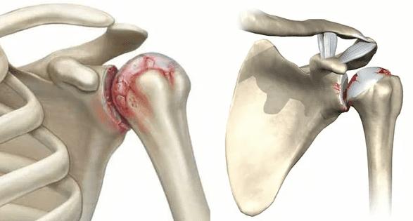 simptomy i lechenie artroza plechevogo sustava