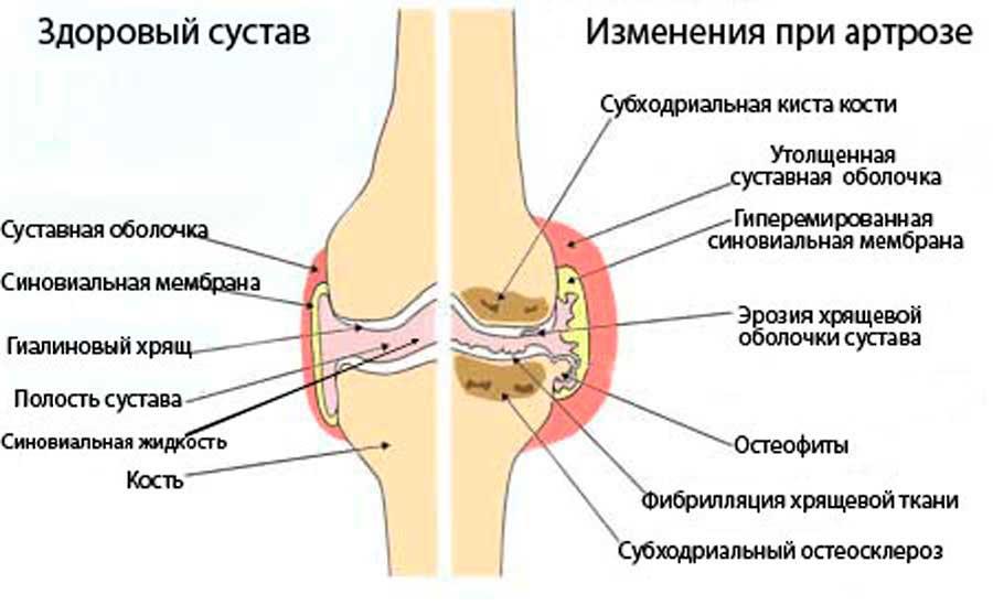simptomy i lechenie deformirujushhego artroza