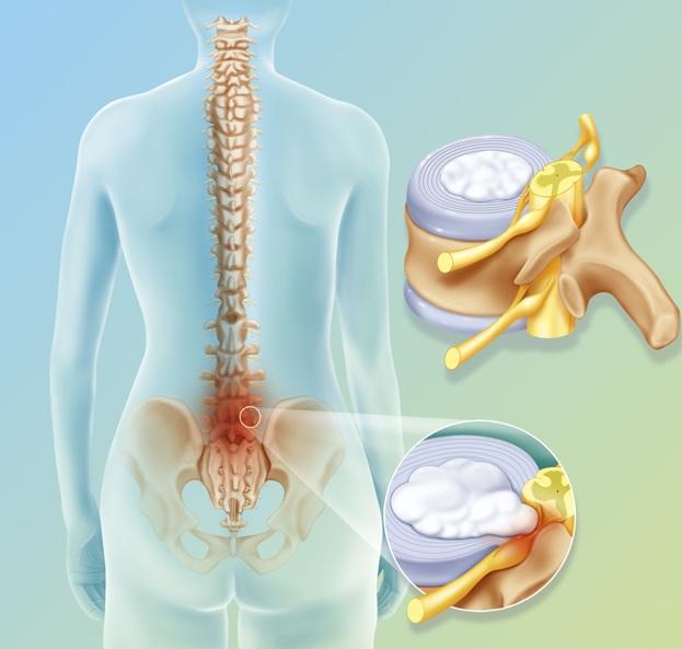 simptomy i lechenie dorsopatii poyasnichnogo otdela pozvonochnika