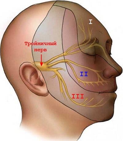 simptomy i lechenie nevralgii trojnichnogo nerva