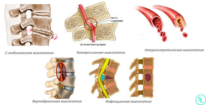 simptomy i osnovnye prichiny mielopatii shejnogo otdela