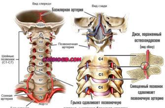 simptomy i sposoby lecheniya sindroma pozvonochnoj arterii