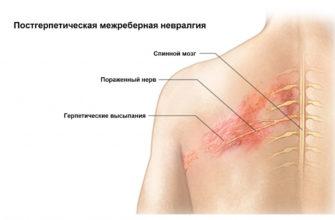 simptomy mezhrebernoj nevralgii
