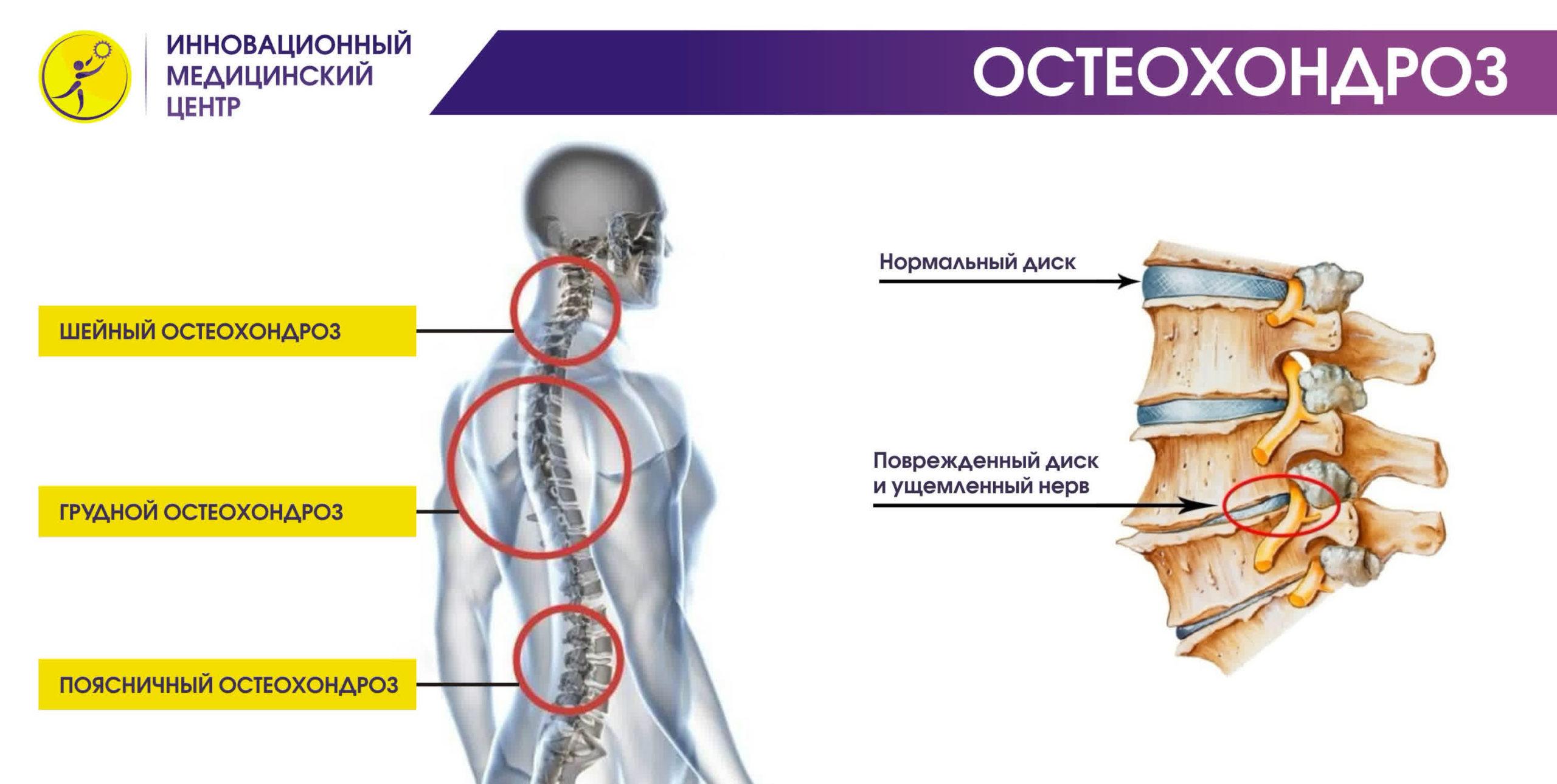 sposoby vylechit osteohondroz pozvonochnika