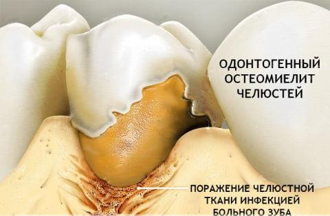 vozmozhnye prichiny i lechenie zabolevaniya osteomielit