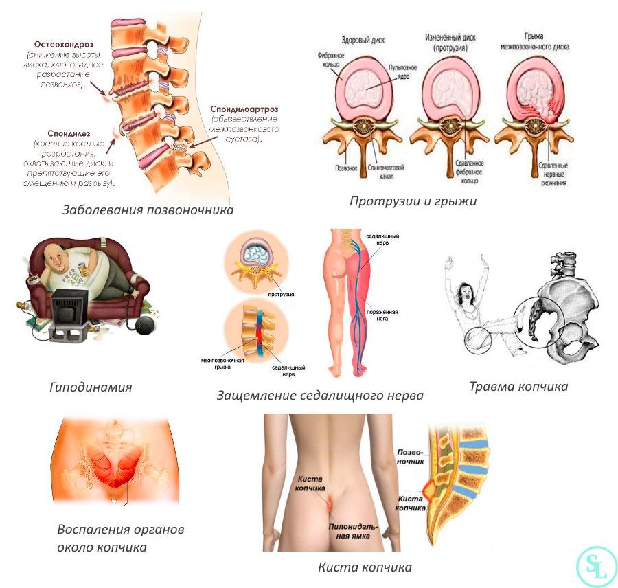 vozmozhnye prichiny i metody lecheniya bolej v kopchike