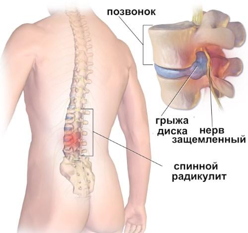 vozmozhnye prichiny i simptomy radikulita
