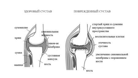 vozmozhnye prichiny vozniknoveniya revmatoidnogo artrita