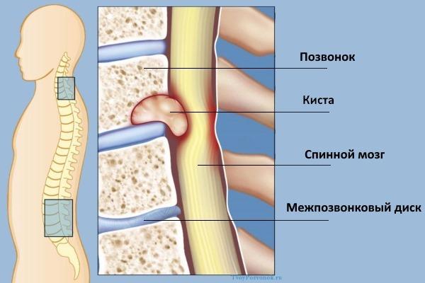 vozmozhnye simptomy i metody lecheniya perinevralnoj kisty pozvonochnika