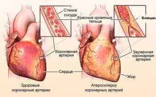 chto takoe gipoksiya miokarda opisanie simptomov lechenie posledstviya i prognoz