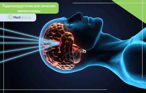 chto takoe meningioma golovnogo mozga vozmozhno li lechenie bez operacii metody udaleniya opuholi prognoz vyzhivaemosti